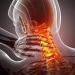 C spine neck pain