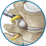 Endsocpic lumbar discectomy