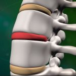 Lumbar spine model drawing with DDD very nicely